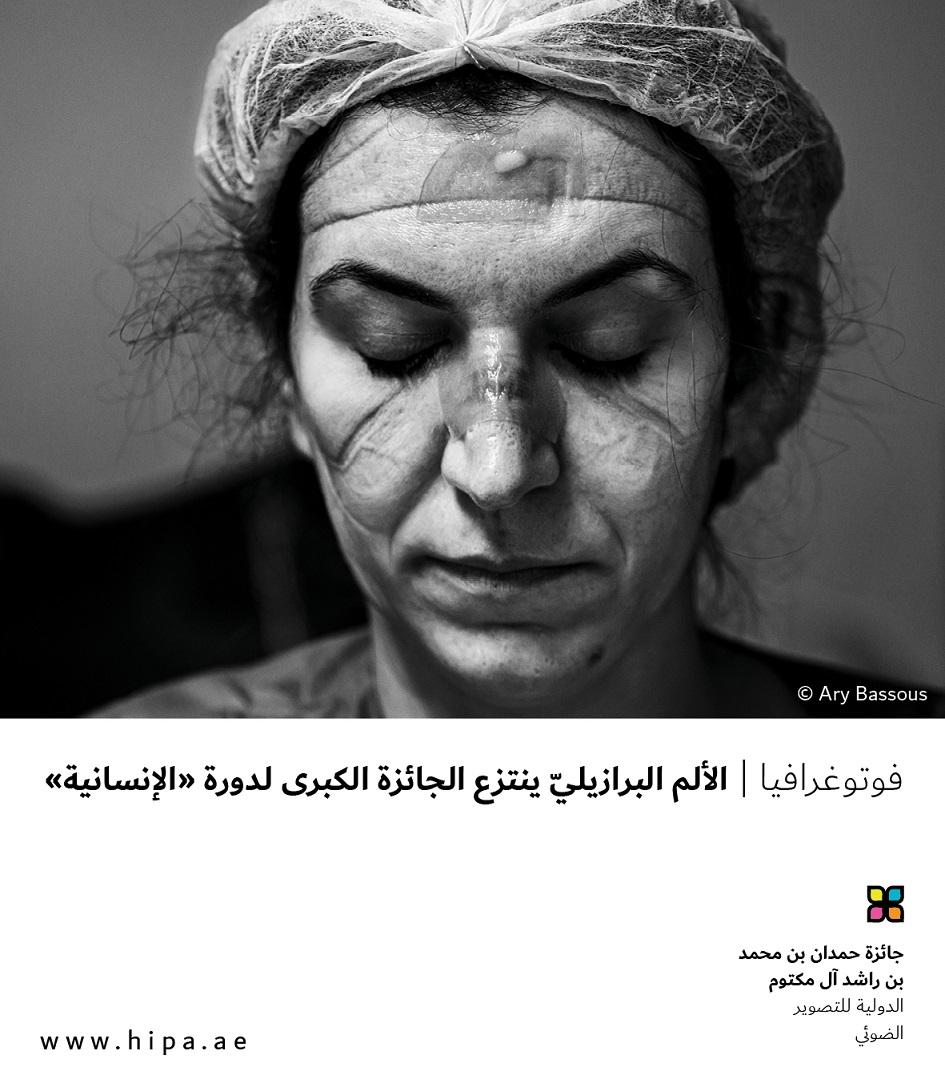 """فوتوغرافيا : الألم البرازيليّ ينتزع الجائزة الكبرى لدورة """"الإنسانية"""""""